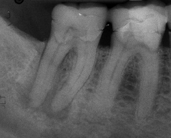 molar tooth infection